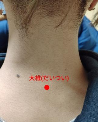 HISASHI(ヒサシ) 風邪