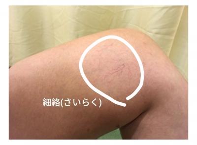 HISASHI(ヒサシ) 細絡(さいらく)