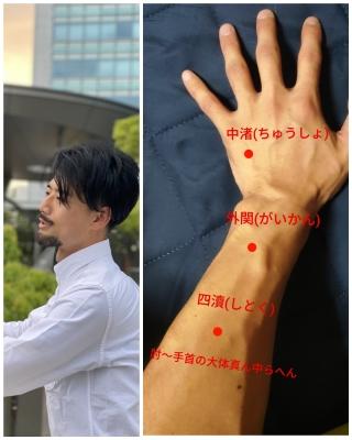 HISASHI(ヒサシ) 側頭部痛